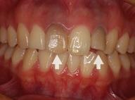 神経を取った歯の漂白1