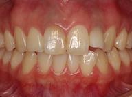 神経を取った歯の漂白2