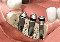 インプラント埋入手術 1回法 治療方法