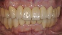 当院での治療例 インプラント治療を行い、歯ごたえのある食べ物を楽しめるようになりました。