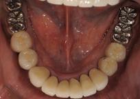 当院での治療例 下の歯 インプラント治療後