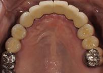 当院での治療例 上の歯 インプラント治療後