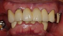 当院での治療例 上下とも奥歯を失い、固いものが噛めない状態でした。