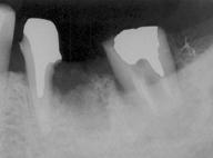 歯牙移植3