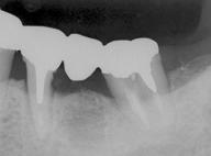 歯牙移植4