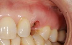 歯牙の再植2