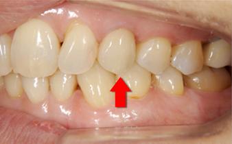 歯牙の再植5