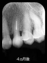 歯牙の再植7